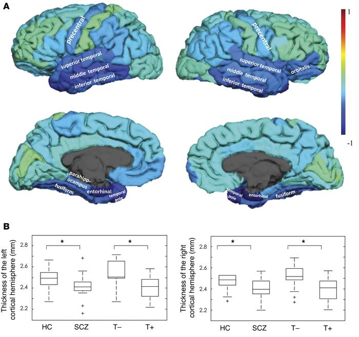 Pattern of cortical thickness across the groups. (A) Surface-based weigh...