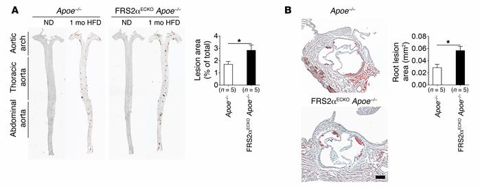 Effect of endothelial FGF signaling suppression on atherosclerosis in mi...