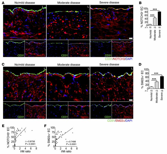 Smooth muscle marker expression in the endothelium of human coronary art...