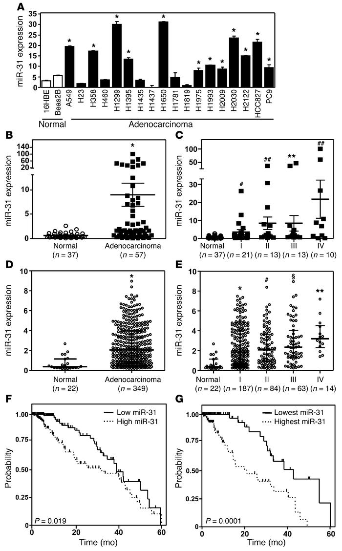 miR-31 is overexpressed and correlates with poor survival in lung adenoc...