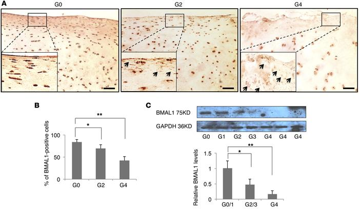 Reduction of BMAL1 expression in articular cartilage from human knees wi...
