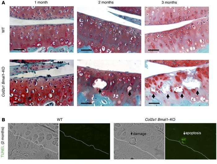 Progressive cartilage degeneration in a Col2a1 Bmal1–/– mouse model. (A)...