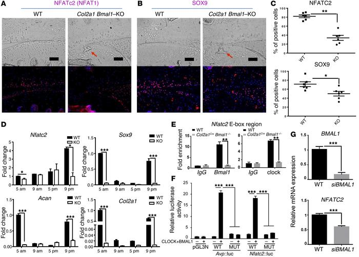 Disrupted circadian control of the NFATC2 pathway in the articular carti...