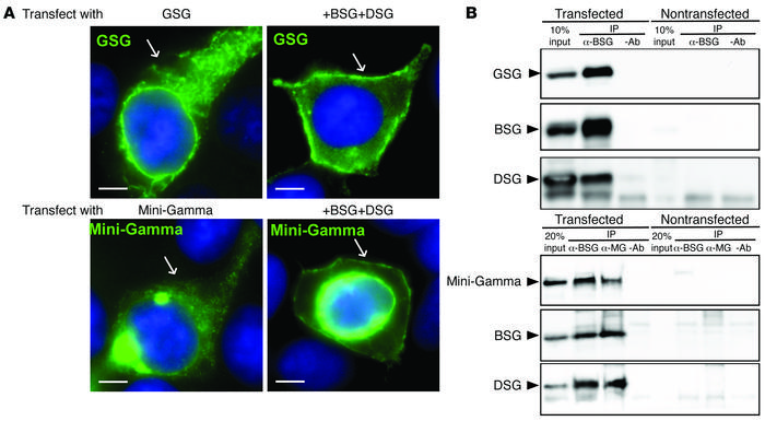 Mini-Gamma interacts with β- and δ-sarcoglycans. Plasmids encoding mamma...