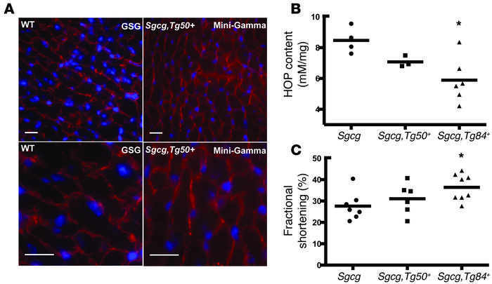 Mini-Gamma reduces fibrosis and improves function of Sgcg hearts. (A) Mi...