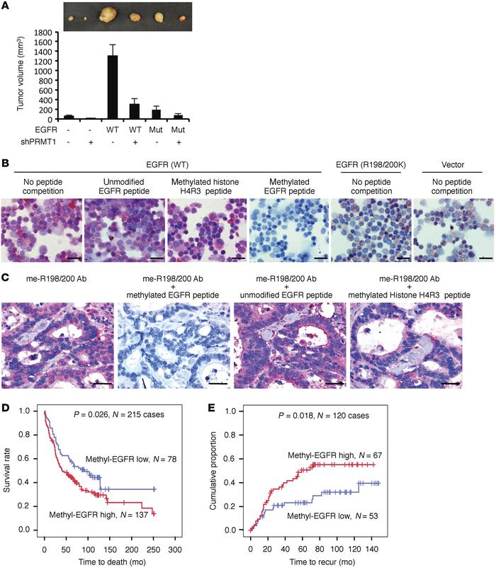 Methylation of EGFR increases tumorigenesis in orthotopic colorectal can...