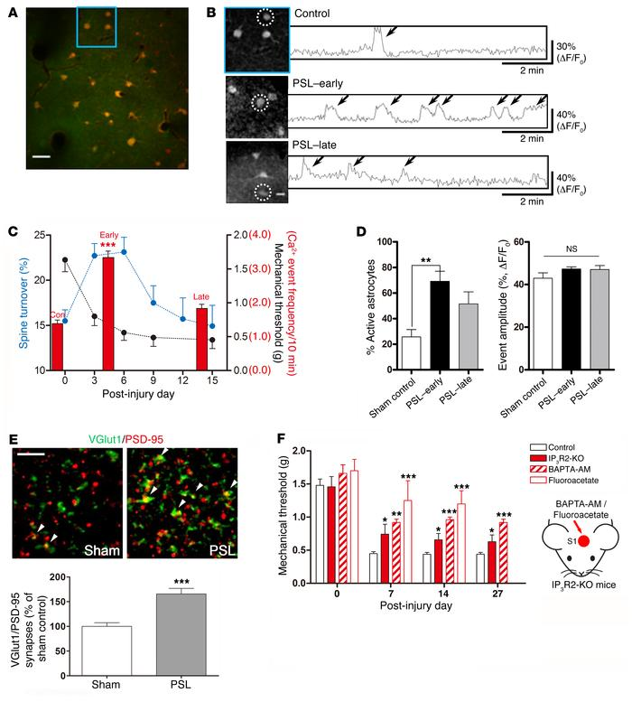 Increased numbers of astrocytic Ca2+ transients in S1 cortex following P...