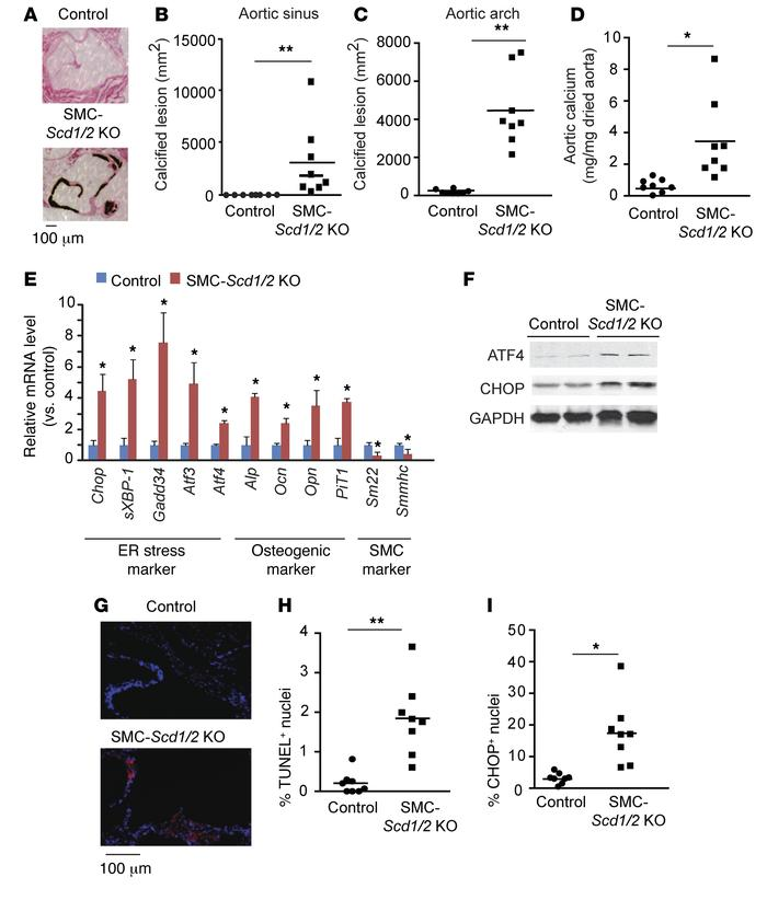 SMC-specific SCD1 and SCD2 double deficiency induces vascular calcificat...