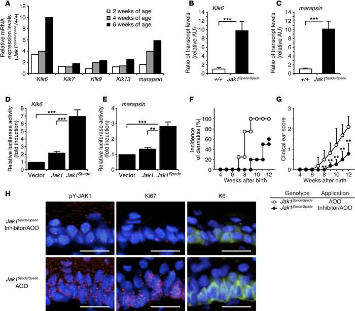 Overexpression of serine proteases in Spade-mutant skin and their role i...