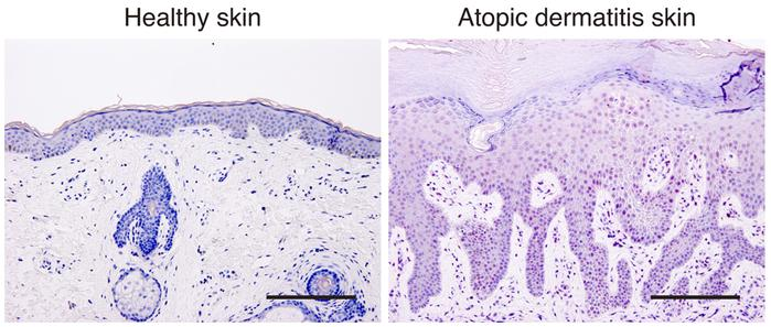 Immunohistological analysis of JAK1 activation in the skin of a patient ...