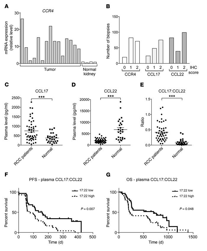 Abnormal expression of CCR4 and its ligands in human renal cancer. (A) C...