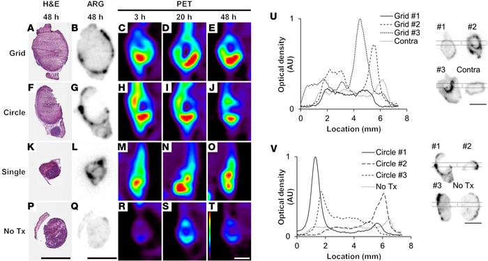 Ablation greatly enhances 64Cu-LCL accumulation in tumor rim and remaini...