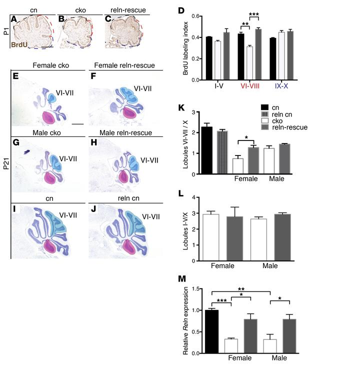 Reln downregulation is partly responsible for cerebellar hypoplasia in ...