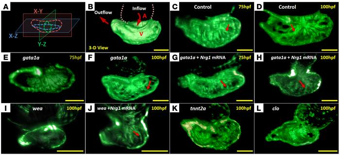 The dynamics of 3D cardiac architecture in response to genetic manipulat...