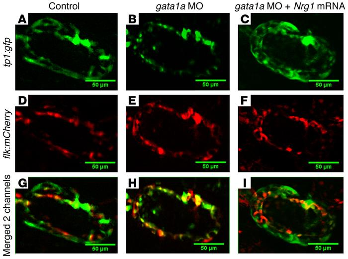 Endocardial Notch activation in Tg(cmlc2:mCherry;tp1:gfp) zebrafish. (A)...