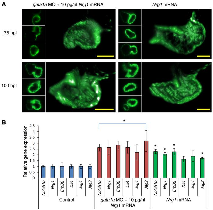 High-dose Nrg1 mRNA (10 μM) did not restore trabeculation in the gata1a ...