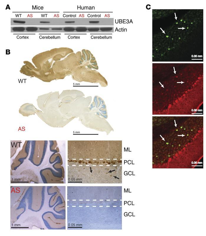 UBE3A is highly expressed in the cerebellum. (A) Western blot analysis r...