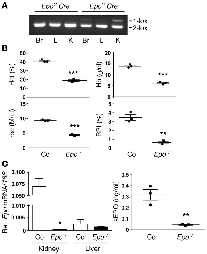 Inactivation of Epo in FOXD1 stroma-derived cells results in severe anem...