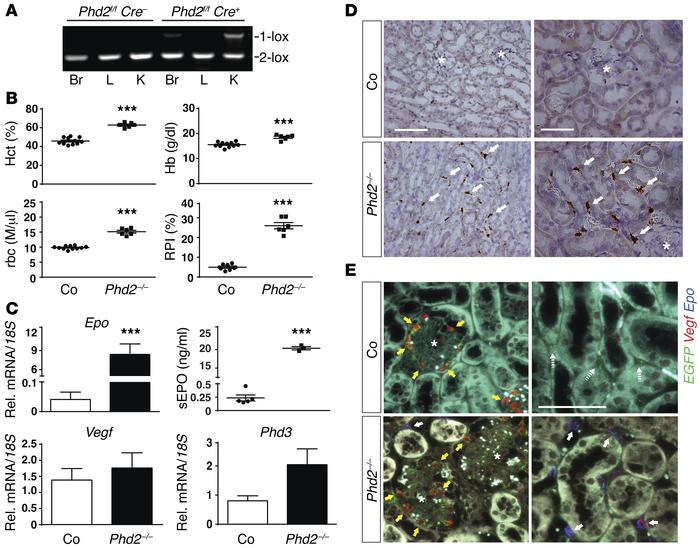 Inactivation of Phd2 in FOXD1 stroma-derived renal interstitial cells re...