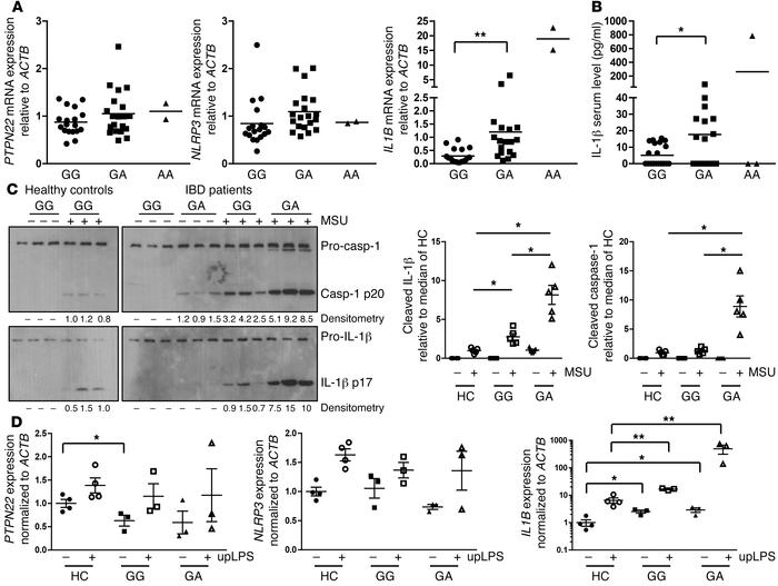 The presence of PTPN22 gain-of-function variant results in increased IL-...
