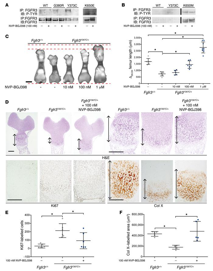 NVP-BGJ398 inhibits the activation of FGFR3 and rescues ex vivo bone gro...