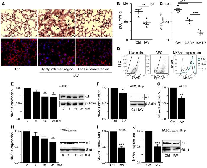 NKAα1 protein on the plasma membrane is decreased in a murine model of s...