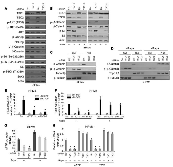 Disruption of the TSC protein complex leads to GSK3β activation and redu...