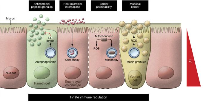 Epithelial autophagy and barrier function. IBD results from dysregulated...