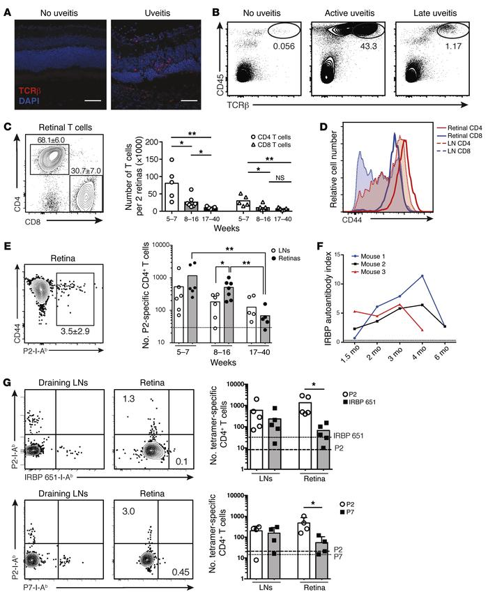 Activated IRBP-specific T cells infiltrate the retinas of AireGW/+ Lyn–/...