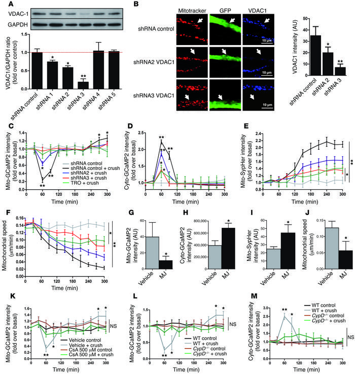 VDAC1 controls mitochondrial calcium release during demyelination. (A) V...