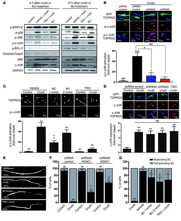 Mitochondrial calcium release through VDAC1 induces SC demyelination. (A...