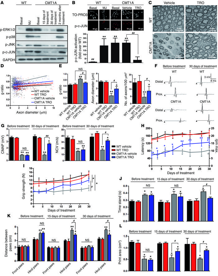 Blocking VDAC1 activity prevents demyelination and improves neuromuscula...