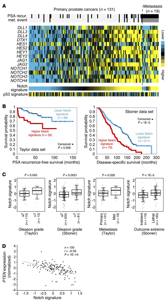 Higher Notch signaling predicts poor clinical outcomes. (A) Expression h...