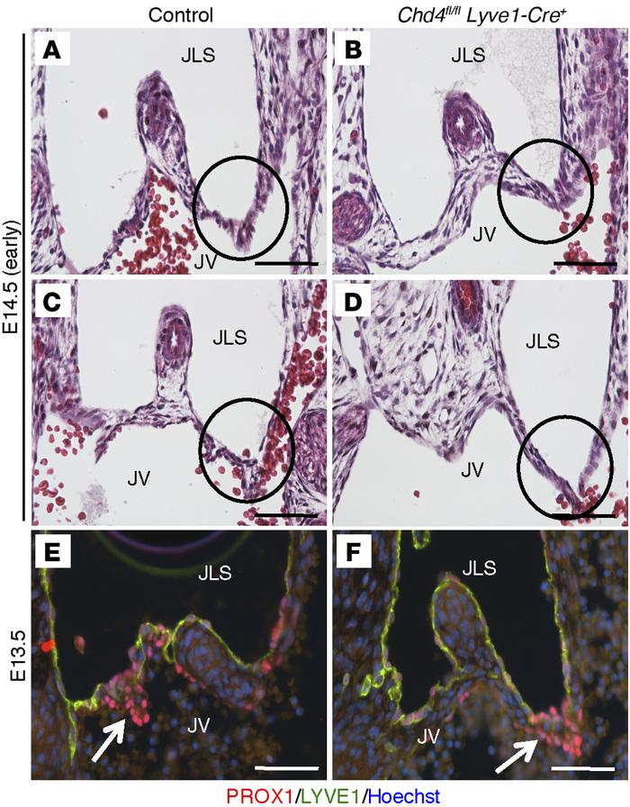 JCI - CHD4-regulated plasmin activation impacts lymphovenous