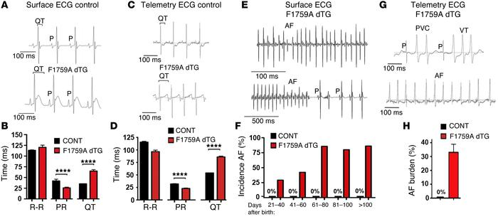 Prolonged QT interval and spontaneous AF in F1759A-dTG mice. (A) Represe...