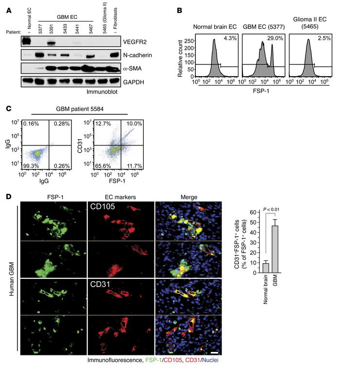 Mesenchymalization in human GBM-associated ECs. Single-cell suspensions ...