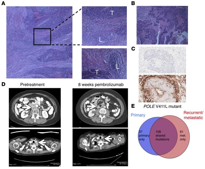 Histologic, radiologic, and genomic characteristics of a patient with PO...