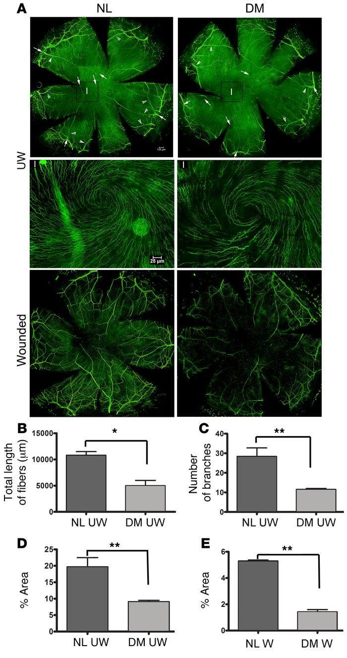 Quantitation of sensory nerves in UW and healing NL and DM mouse corneas...