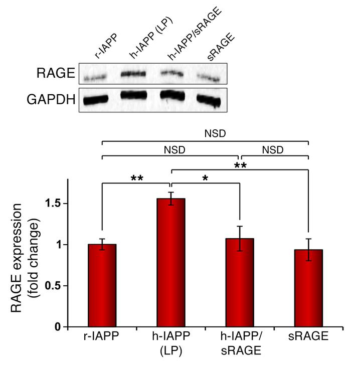 sRAGE inhibits h-IAPP–induced upregulation of RAGE in β cells. Represent...