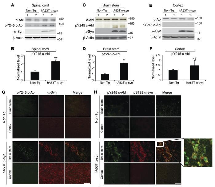 c-Abl is overactivated in symptomatic hA53Tα-syn transgenic mice. (A, C,...