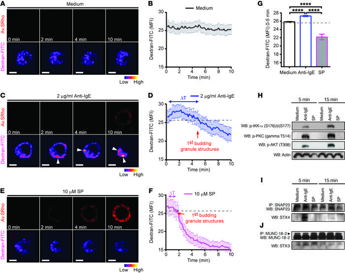 Signaling events and fluorescence dequenching patterns in dextran-FITC–l...
