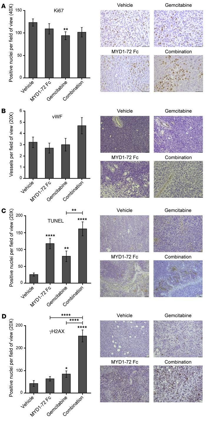 Inhibition of AXL in pancreatic cancer improves the efficacy of gemcitab...