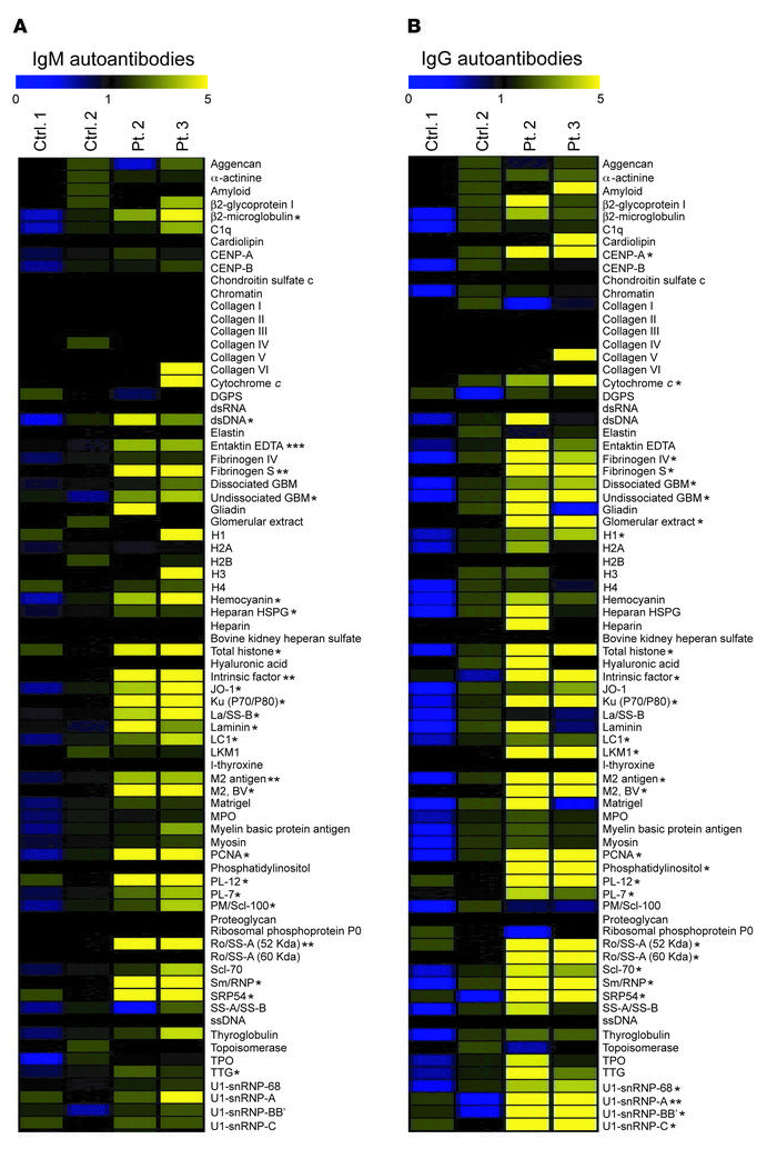 Serum autoantibodies in patients 2 and 3. (A and B) Heat map display of ...