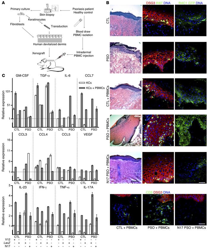 Epidermal RAC1 promotes an immunoproliferative psoriasis phenotype. (A a...