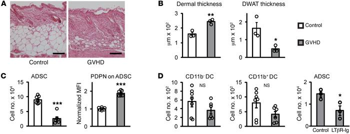 LTβR signaling maintains ADSCs in the systemic sclerosis–GVHD model of s...