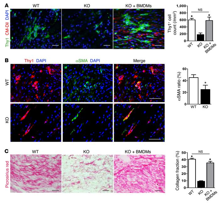 Depletion of M2-like macrophages in Trib1–/– mice led to impaired fibrob...