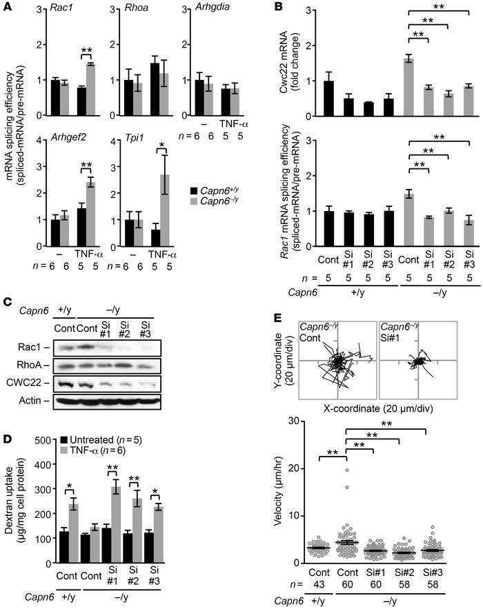 Rac1 downregulation in hyperpinocytotic macrophages is due to a disorder...