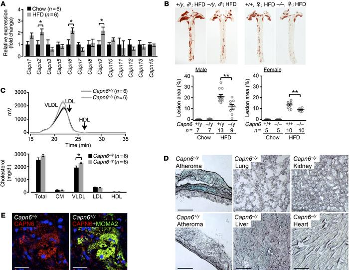 CAPN6 is induced in murine atheromas and exacerbates atherosclerotic dis...