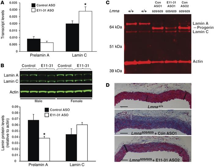 ASO E11-31 reduces the expression of lamin A in wild-type mice and proge...