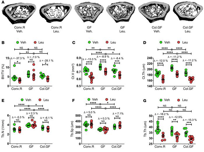 GF mice are protected against the loss of trabecular bone induced by sex...
